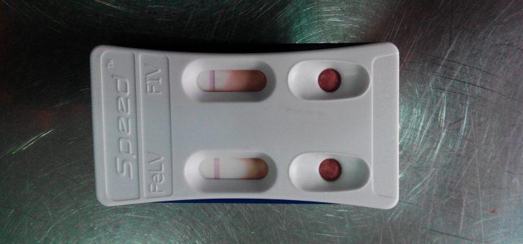 Test inmunodeficiencia y leucemia
